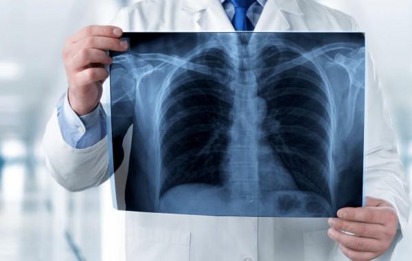 Investigatii imagistice: radiologie și DEXA